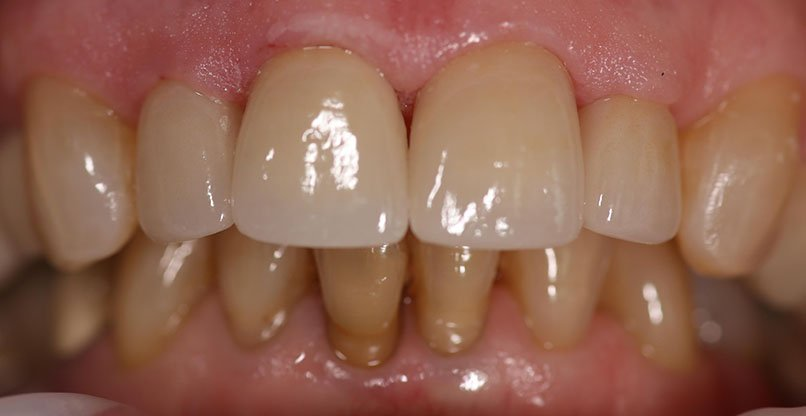 After shot of a patient crowns
