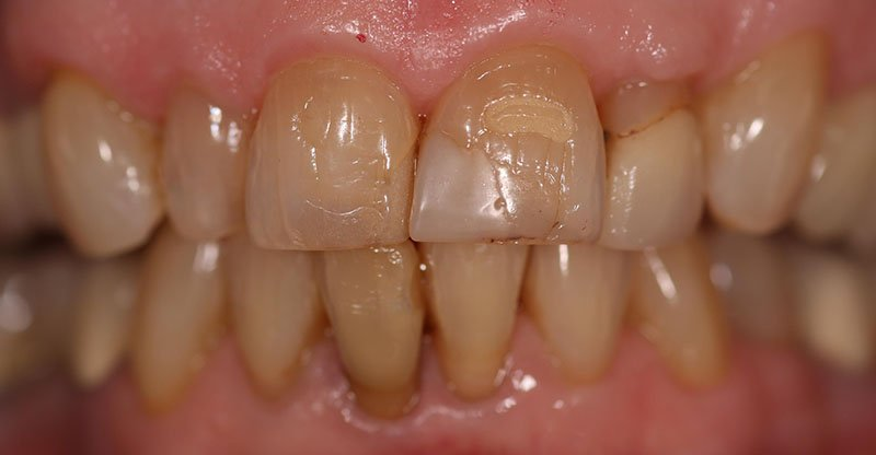 Before shot of a patient crowns