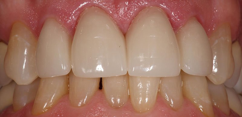After shot of a patient crowns and whitening