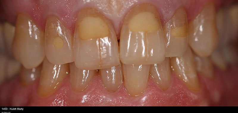 Before shot of a patient crowns and whitening