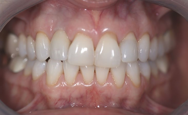 After shot of a patient implant and crowns