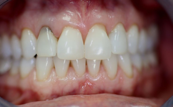 Before shot of a patient implant and crowns