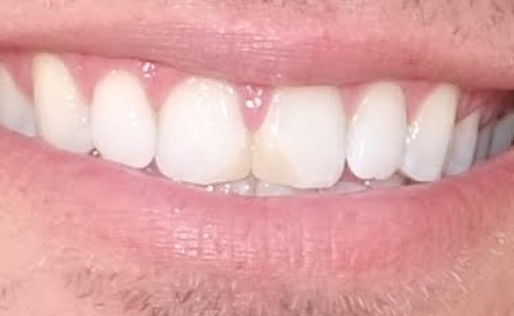 Before shot of a patient composite restoration
