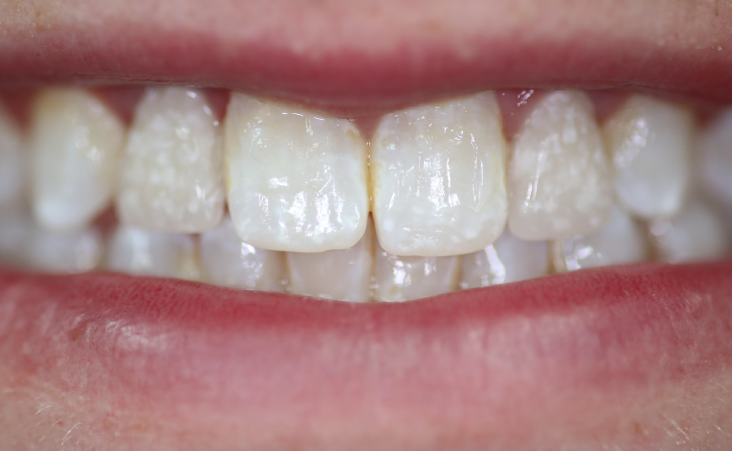 After shot of a patient implant and crown