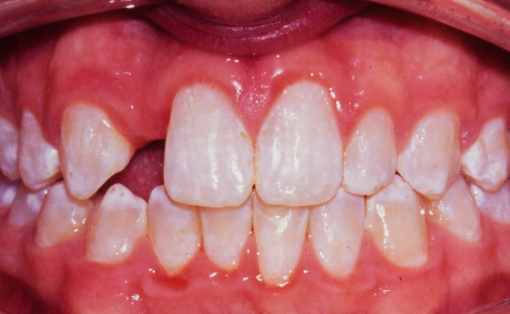 Before shot of a patient implant and crown