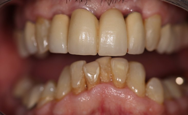 Before shot of a patient Implant Supported Bridges
